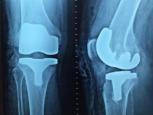 Orthopedic doctor in Chittagong